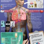 <b>Causes of Lung Cancer</b>
