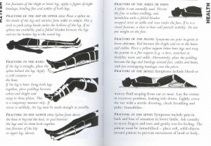 SAS 148 - First Aid & Fractures